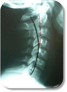x-ray-3.jpg